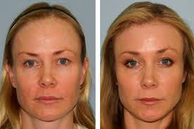 long haircuts for women with high hairlines hairline lowering san francisco forehead reduction california