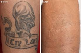 small tattoo removal before and after danielhuscroft com