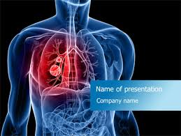 powerpoint design lungs lung template lung cancer powerpoint template backgrounds 08239