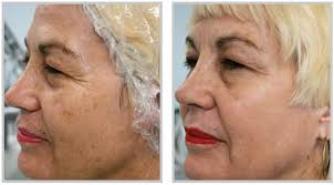 remove dark skin spots http northhoustonlasertattooremoval com
