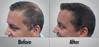 hair extensions post chemo toronto all the most advanced hair loss solutions now available