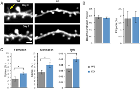altered structural and functional synaptic plasticity with motor