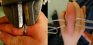 Does The Wedding Band Go Before The Engagement Ring by Removal Of Titanium Wedding Rings