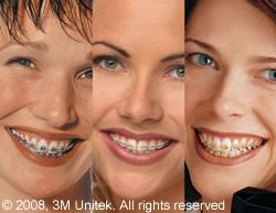 brenham dental center braces