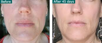 Light Therapy For Skin Photo Rejuvenation Infrared Red Led Light Therapy Before And After