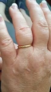 knuckle finger rings images Sawing off rings did your knuckles grow when you weren 39 t looking jpg