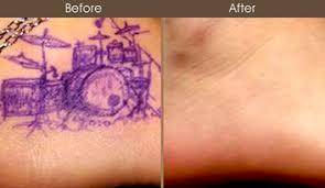 tattoo removal nyc birthmark removal u0026 melasma manhattan