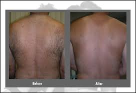 how much does laser hair removal cost on back laser hair removal cost before after faq hartford ct