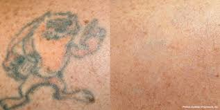 hinsdale picosure laser tattoo removal laser aesthetic center