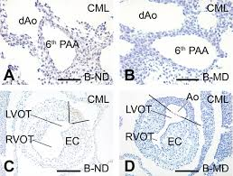 specific local cardiovascular changes of nɛ carboxymethyl lysine