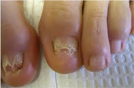 fingernail fungus pictures nail infection you can get more