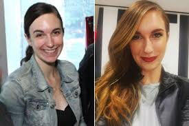 Wen Hair Loss Pictures Shampoo Is Ruining Your Hair New York Post