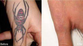 houston u0027s premium laser tattoo removal clinic advanced technology
