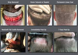 neograft recovery timeline neograft fue hair transplant procedure overview for physicians