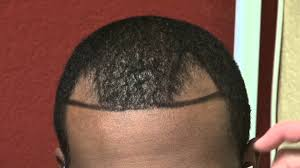 hairline restoration for black men black hairline hair loss restoration transplant restoration