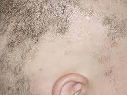 Reasons For Sudden Hair Loss Alopecia Areata Babycenter
