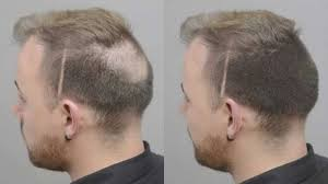 haircuts for crown bald spots best hairstyle for bald spot fade haircut