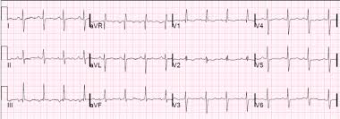strain pattern ecg meaning dr smith s ecg blog chronic right ventricular hypertrophy or