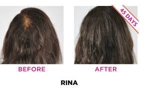 before and after ihrf formula best hair loss treatment in men