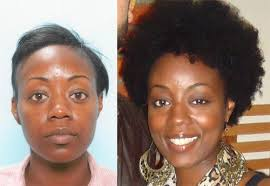 hair transplant for black women african american female hair transplant testimonial carolina