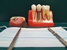 how to get into dental prerequisites apply fix teeth