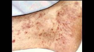 pilonidal cyst location itchy ankles causes signs treatment