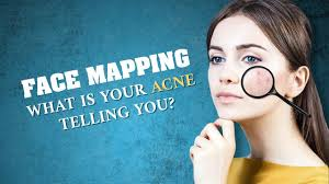 Face Mapping Acne Face Mapping What Does Acne Reveal About Your Health Youtube