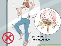 3 ways to with a ruptured disc wikihow