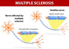 Multiple sclerosis case study physical therapy LinkedIn