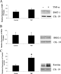 In Ex by A Role For Tumour Necrosis Factor α In Human Small Bowel Iron