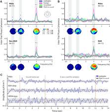 sleep disrupts high level speech parsing despite significant basic
