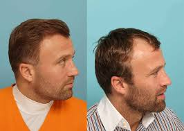 jimmy kimmel hair loss celebrities athletes who have had hair trnasplants tressless