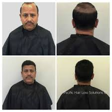 male hair extensions before and after lace front hair piece system for man suffering from male pattern