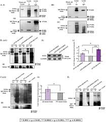 cellular levels of grb2 and cytoskeleton stability are correlated