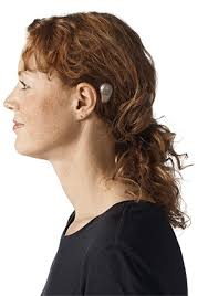 hairstyle that covers hearing aid wearer bone anchored hearing aid