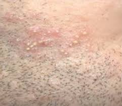 hair vagaina photos bumps on labia vag lips monora pimples after shaving itchy