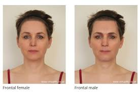 feminization hair forehead reconstruction and simultaneous hair transplant in