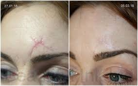 Eyebrow Tattoo Before And After Scar Treatment Meditatu Dry Tattooing Improving Scars
