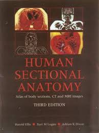 Mri Sectional Anatomy Human Sectional Anatomy Atlas Of Body Sections Ct And Mri Images