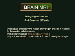 Sagittal Brain Mri Anatomy Patient Preparation Patient Position Technique Ppt Video Online