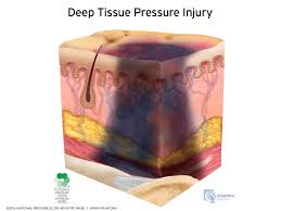 pressure injury staging illustrations the national pressure
