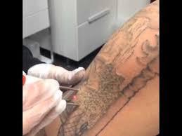 laser tattoo removal tucson arizona youtube