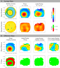 3d corneal shape after implantation of a biosynthetic corneal