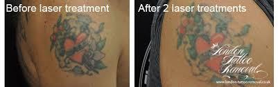 london tattoo removal