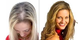 best hair salon for thin hair in nj hair restoration replacement for men and women hair club
