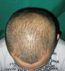 hair transplant costs in the philippines hair transplant cosmetic surgery philippines