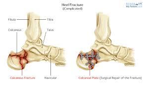 Os Calcaneus Heel Fracture Rehab My Patient