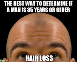 Receding Hairline Meme - how long does it take for a receding hairline to make you go bald