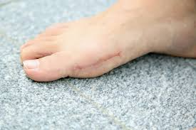 bunion surgery now offers more pros than cons todayonline