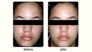 blu light therapy for acne seattle acne laser treatment l juvederm l arlington kent redmond wa